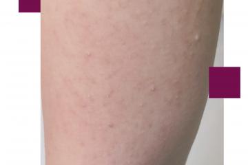 פצעונים על הידיים, על הישבן או על המצח – כדאי ואפשר לטפל